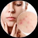 Liečba akné