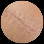 Liečba jaziev (vrátane jaziev po akné)