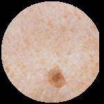 Pigmentové škrvny