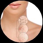 Regenrácia pokožky