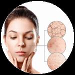 Regenrácia pokožky - Pleť