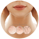 Regenrácia pokožky krku