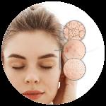 Regenerácia pokožky